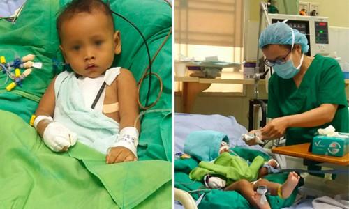 Em bé 12 tháng tuổi được điều trị bệnh tim thành công